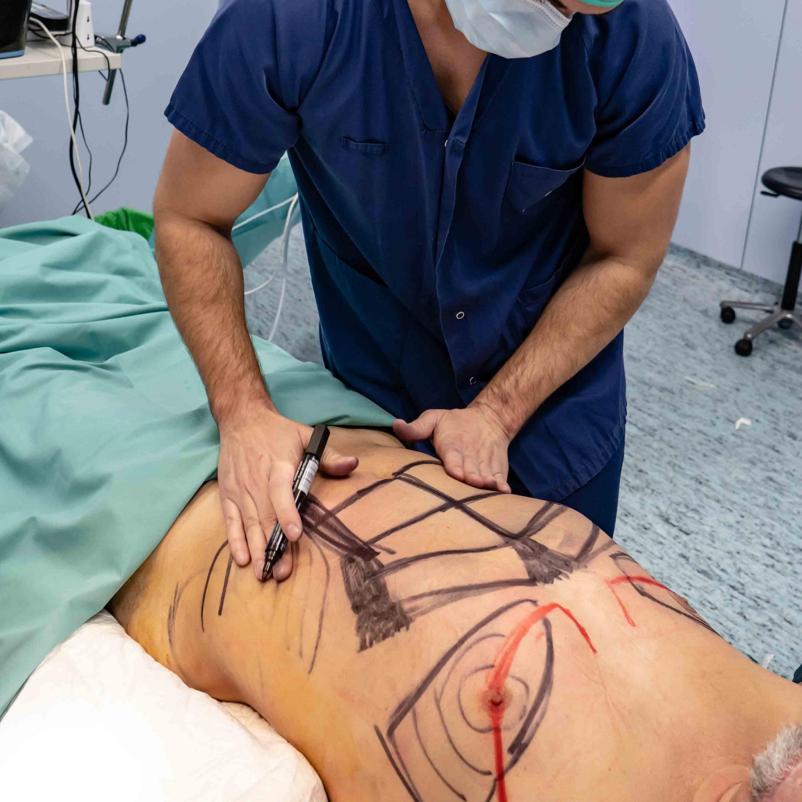 liposuccion mallorca