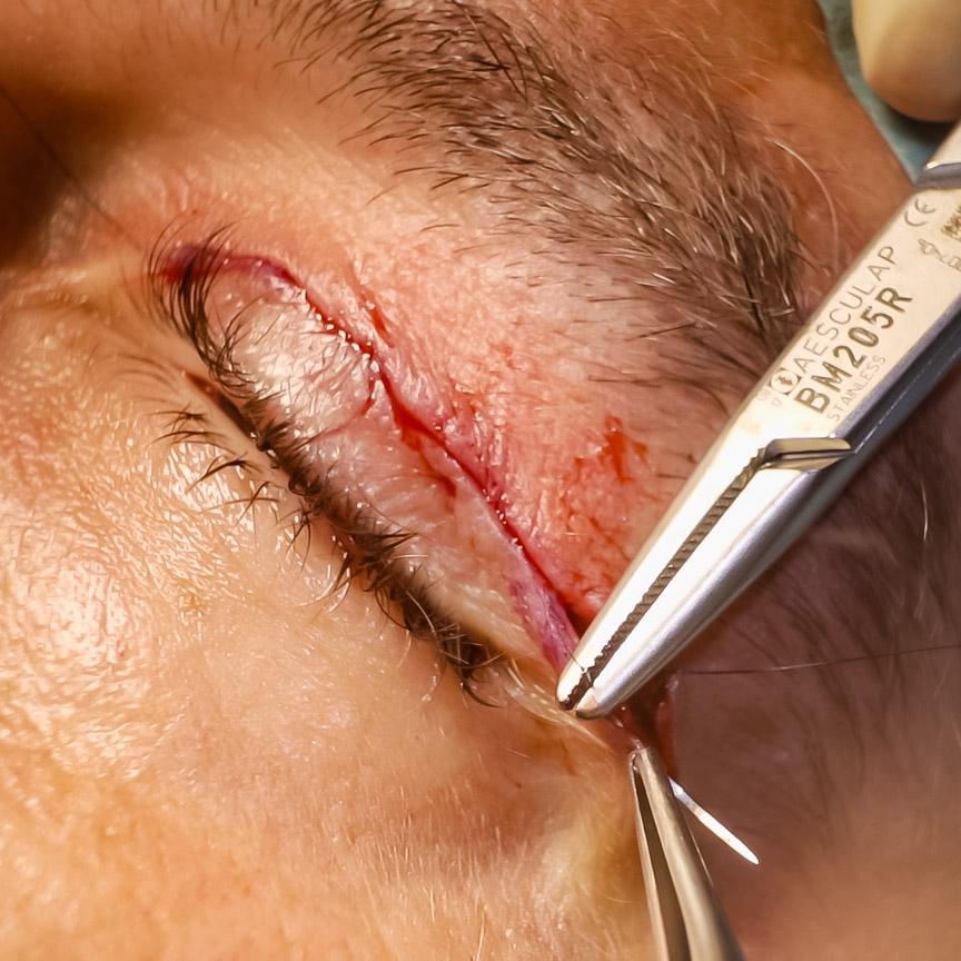 cirugia parpados mallorca